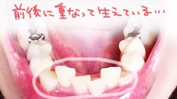歯列矯正前の歯並び